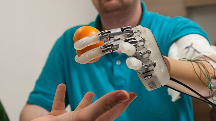 A Mind-Controlled Bionic Hand With Sense Of Touch